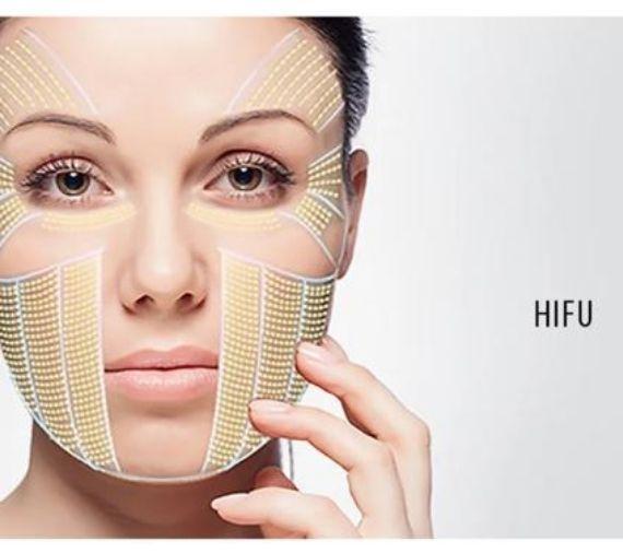 hifu treatment