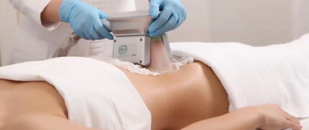 Cryolipolysis - A body sculpting process