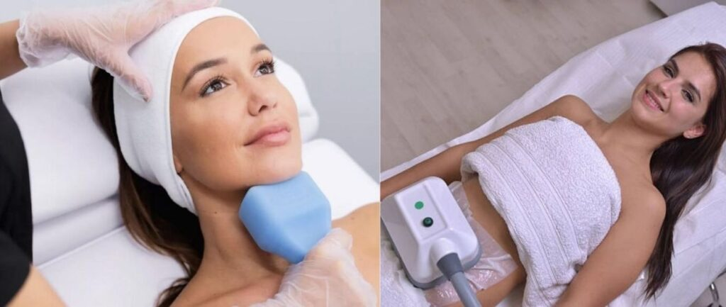 Cryolipolysis is also known as Coolsculpting Technology